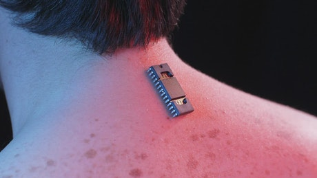 Body implant chip on the back
