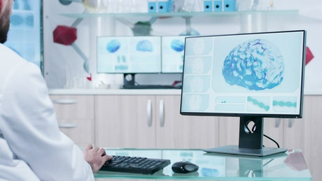 Brain scan on a monitor