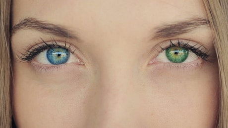 Eyes of a woman of different colors, heterochromia