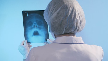 Female doctor looking at the x-ray of a skull