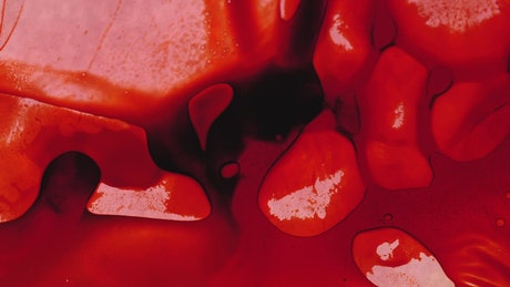 Infected blood under a microscope