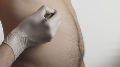 Marking a man's abdomen before liposuction surgery