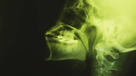 X-ray of bone mass of the head